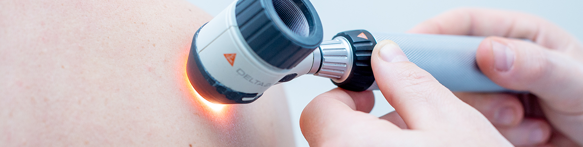 Pregled kožnih znamenj z dermatoskopom